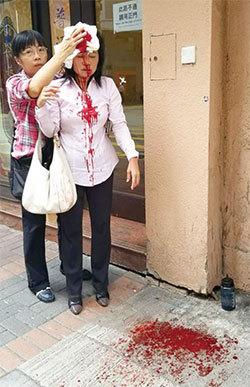 >「十一」前夕中共雇凶施暴 香港一天釀三案