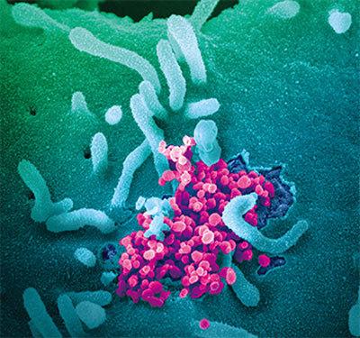 >【症狀與病毒】中共病毒是重組病毒哈佛博士:進攻性生物戰武器
