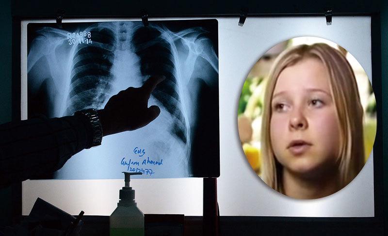 「X光眼女孩」功能診病 醫學博士也信服