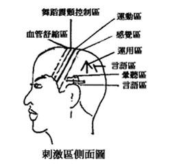 >【現代醫案】老人痴呆症的預防及頭皮針治療